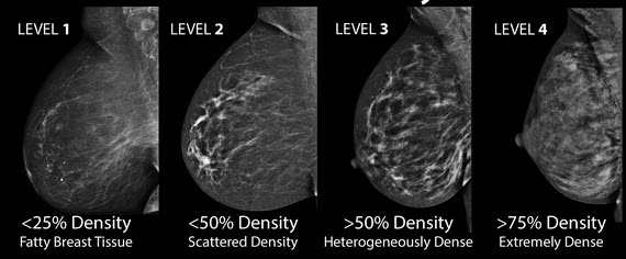 breast-density