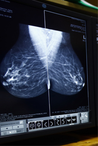 Mammogram - Khartoum Breast Care Centre