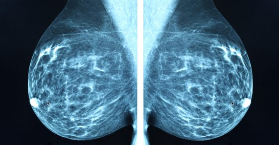 Diagnostic mammogram - Khartoum Breast Care Centre